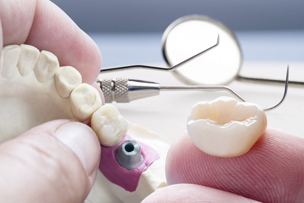 Implantes osteointegrados?