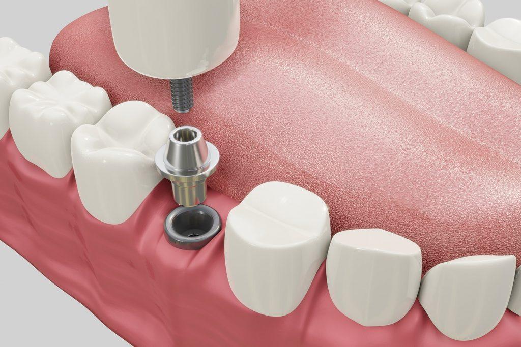Procedimiento de Implantación Dental