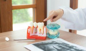 Cuáles son los riesgos de los implantes dentales