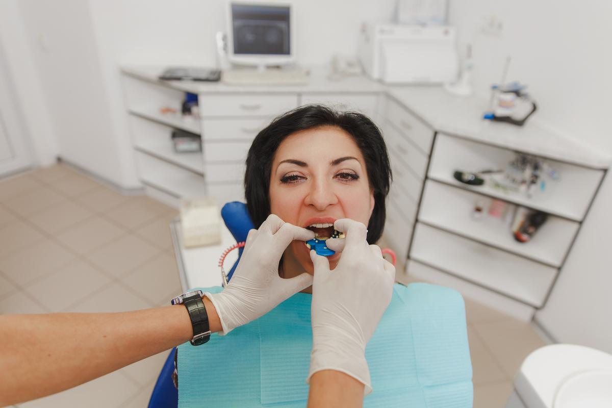 Opciones para restauración de dientes en Panamá