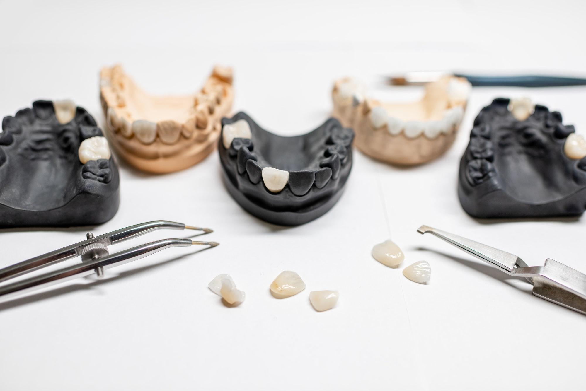 Artificial jaw models with veneers
