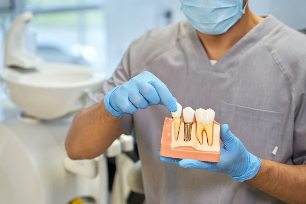 Qué esperar luego de la colocación de un implante dental