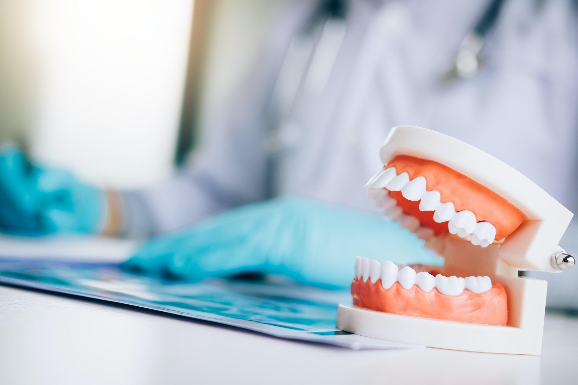 Necesitas injertos de hueso con tus implantes dentales