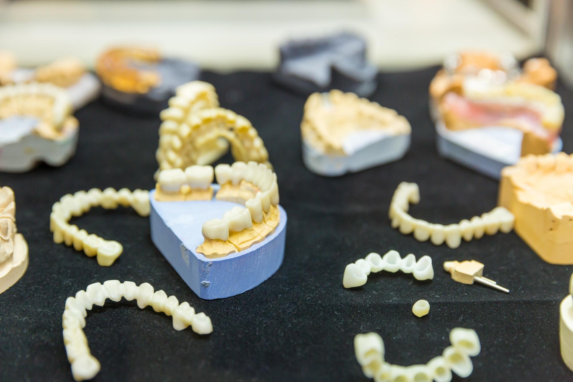 implante dental con injerto de hueso